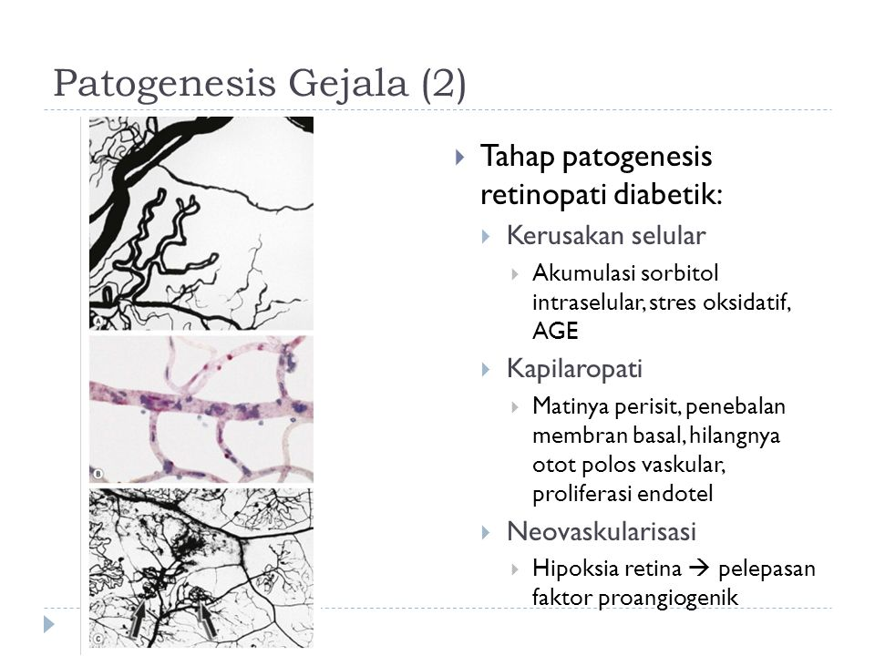 Patogenesis Gejala (2) Tahap patogenesis retinopati diabetik: