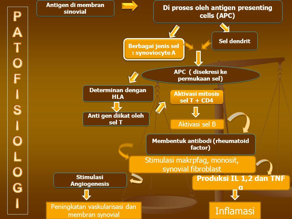 Antigen di membran sinovial