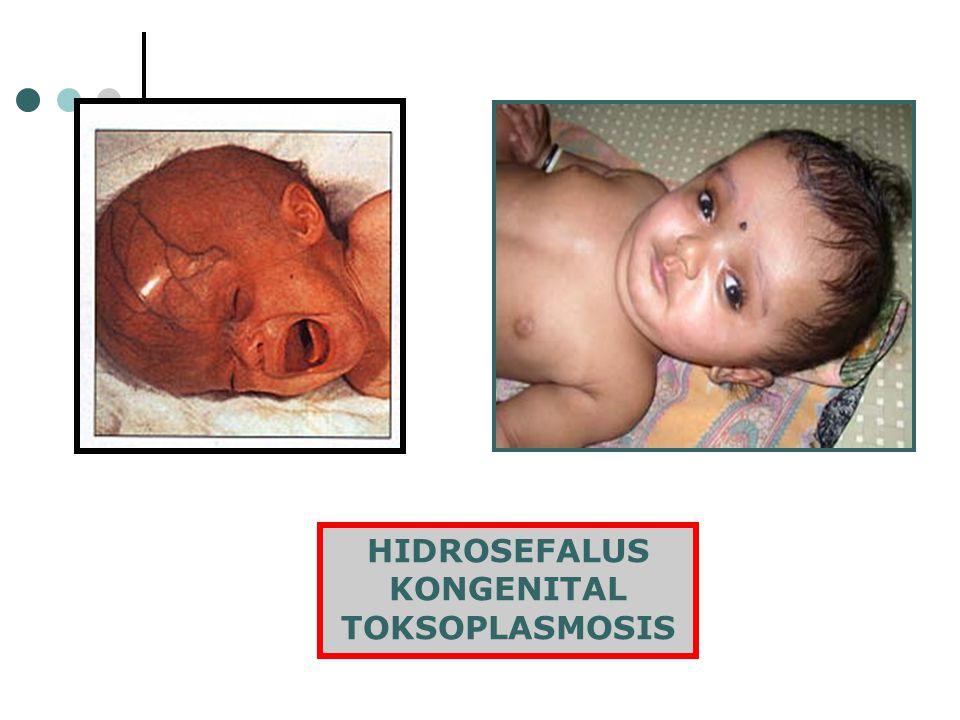 KONGENITAL TOKSOPLASMOSIS