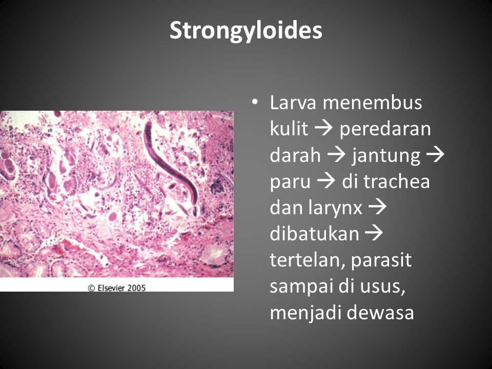 Strongyloides