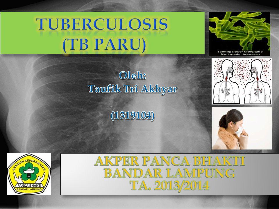 TUBERCULOSIS (TB PARU)