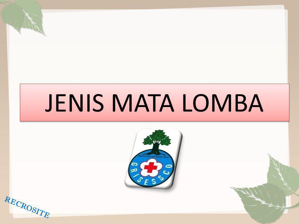 JENIS MATA LOMBA RECROSITE