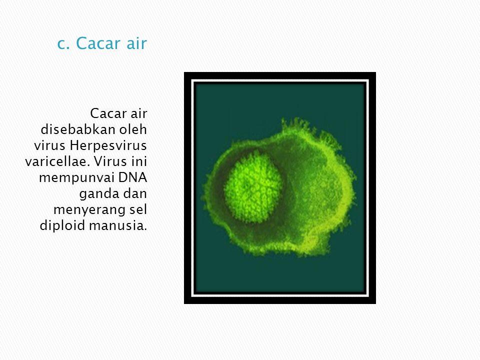 c. Cacar air Cacar air disebabkan oleh virus Herpesvirus varicellae.