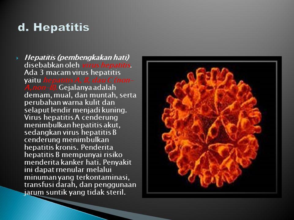 d. Hepatitis