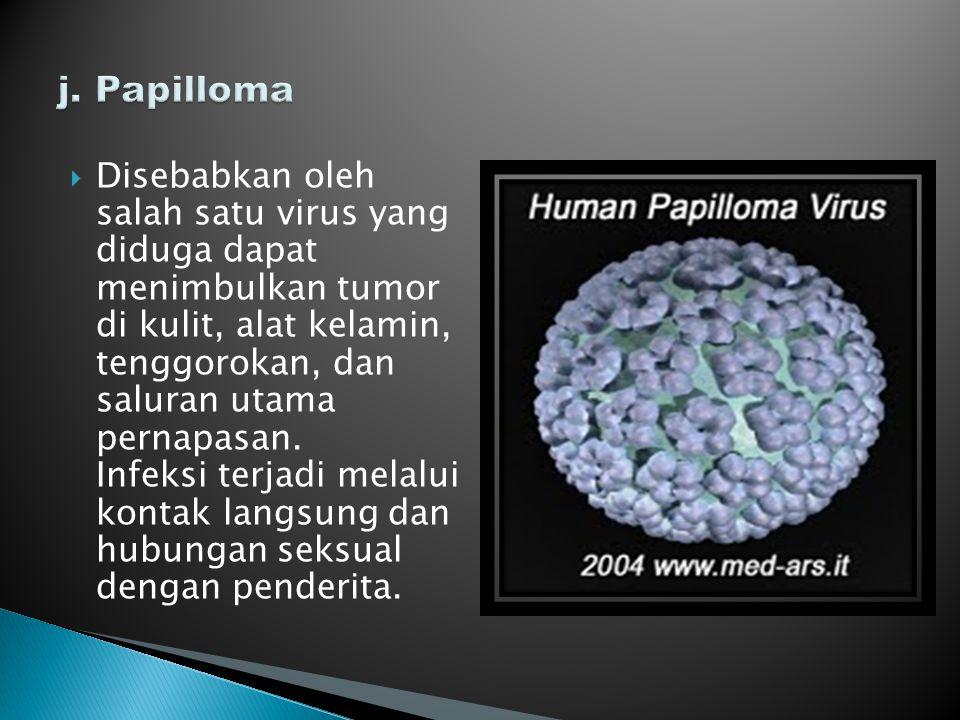 j. Papilloma