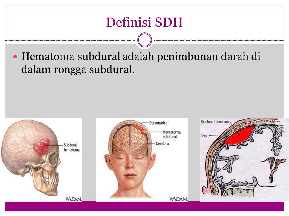 Definisi SDH Hematoma subdural adalah penimbunan darah di dalam rongga subdural.