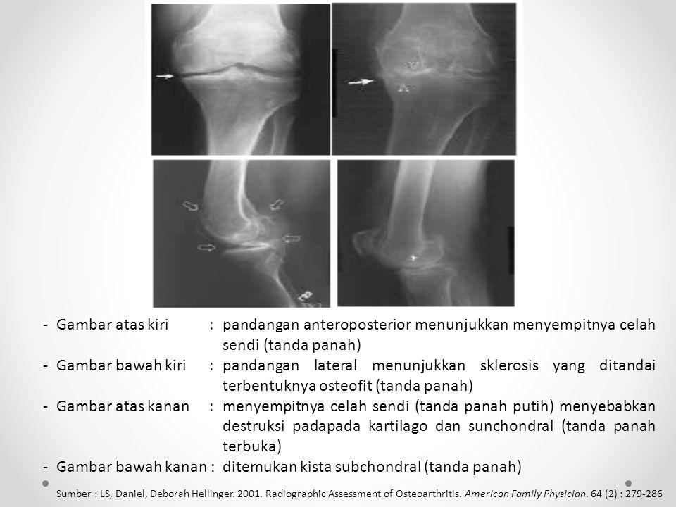 - Gambar bawah kanan : ditemukan kista subchondral (tanda panah)
