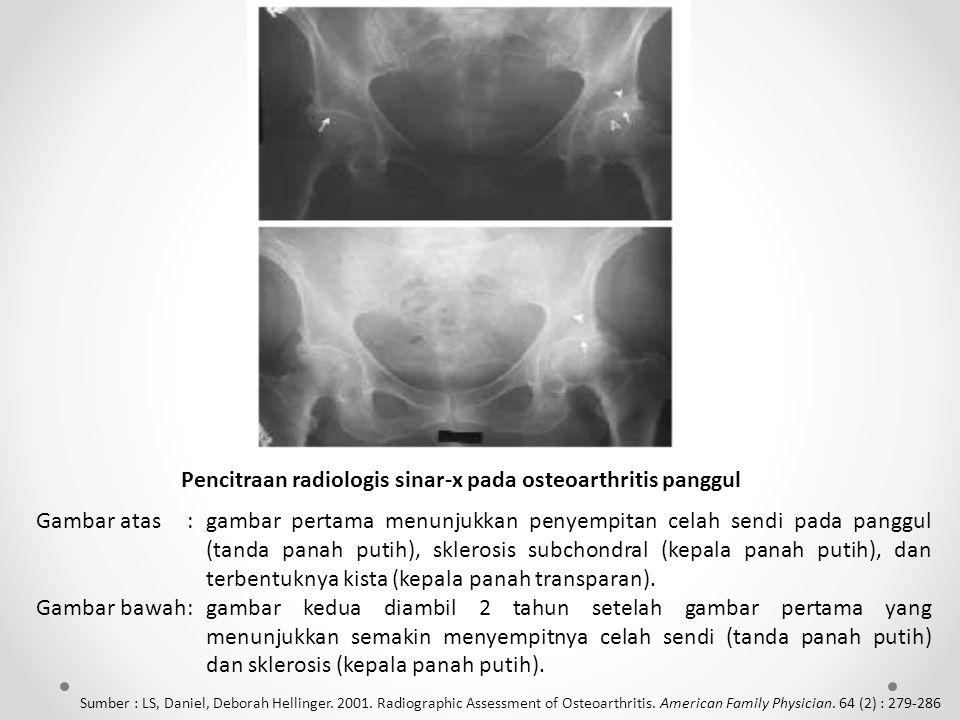 Pencitraan radiologis sinar-x pada osteoarthritis panggul