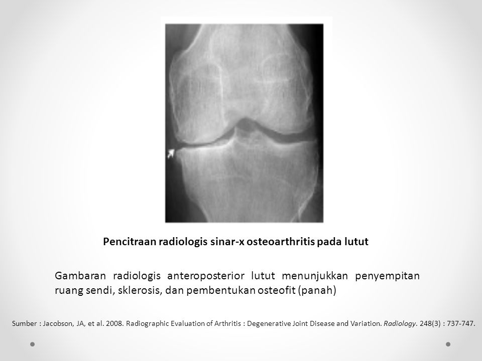 Pencitraan radiologis sinar-x osteoarthritis pada lutut