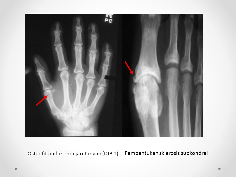 Osteofit pada sendi jari tangan (DIP 1)