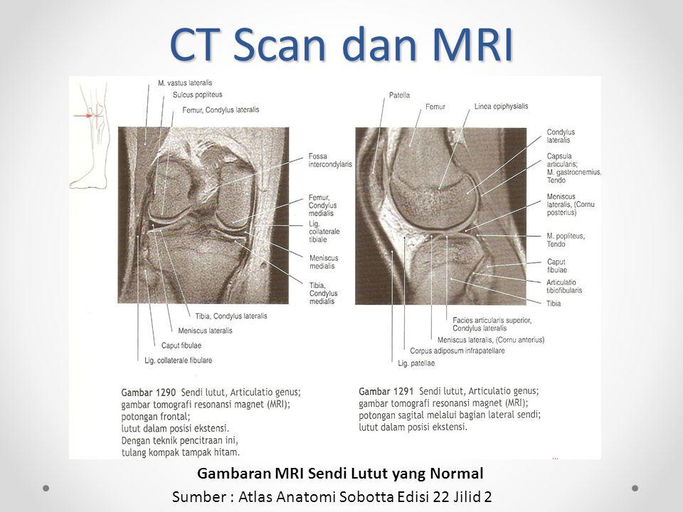 CT Scan dan MRI Gambaran MRI Sendi Lutut yang Normal