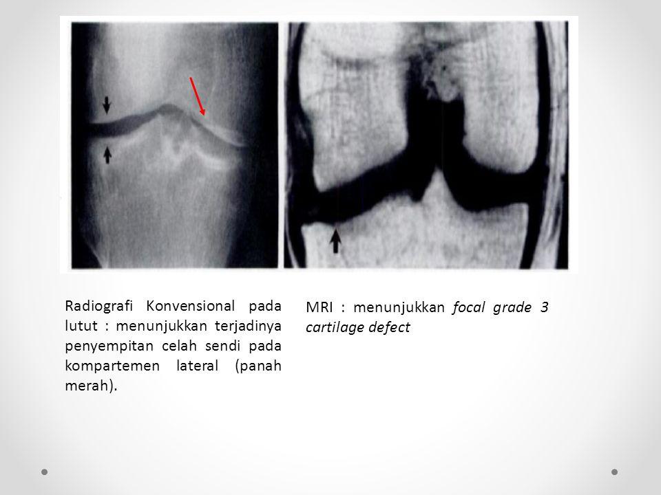 Radiografi Konvensional pada lutut : menunjukkan terjadinya penyempitan celah sendi pada kompartemen lateral (panah merah).