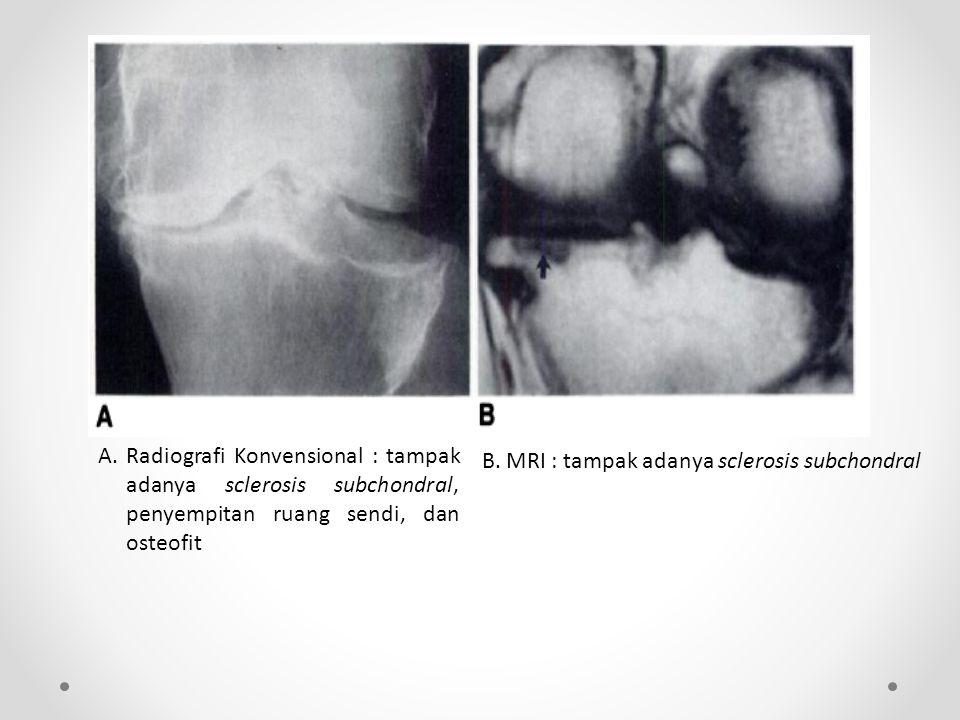 A. Radiografi Konvensional : tampak adanya sclerosis subchondral, penyempitan ruang sendi, dan osteofit
