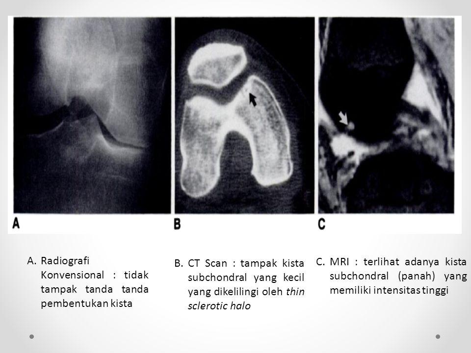 A. Radiografi Konvensional : tidak tampak tanda tanda pembentukan kista