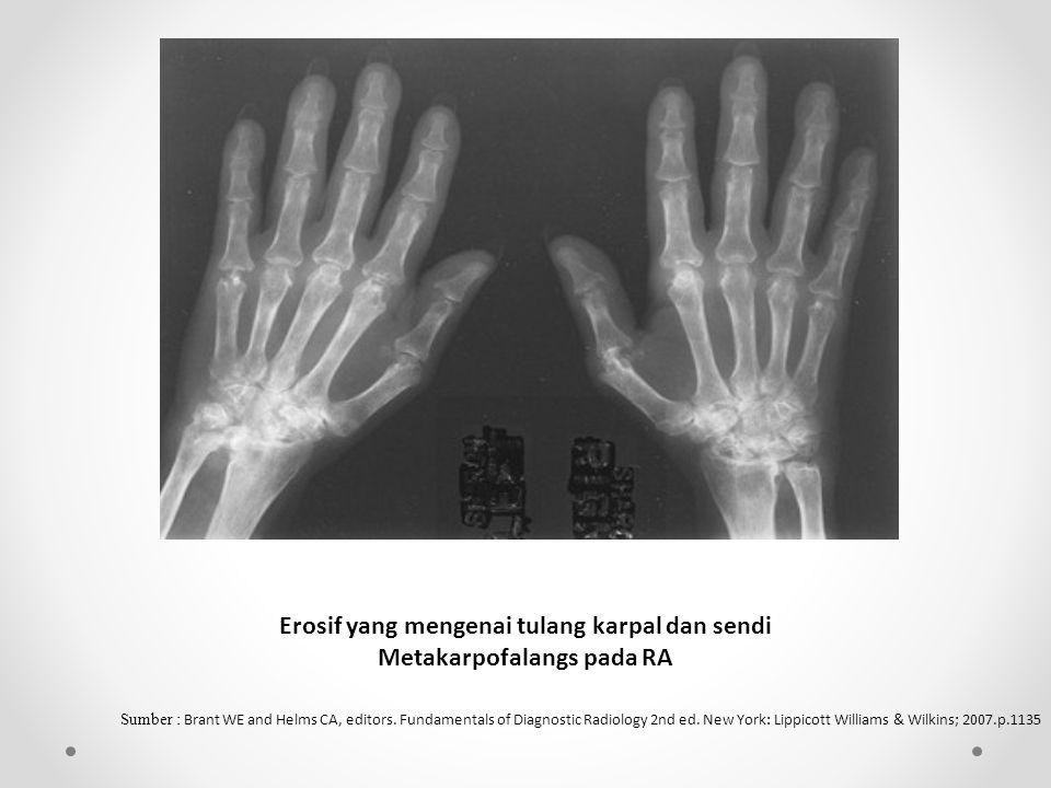 Erosif yang mengenai tulang karpal dan sendi Metakarpofalangs pada RA