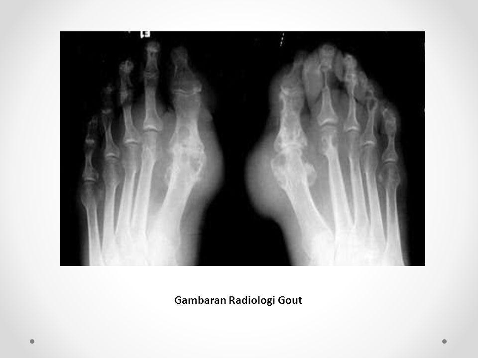 Gambaran Radiologi Gout