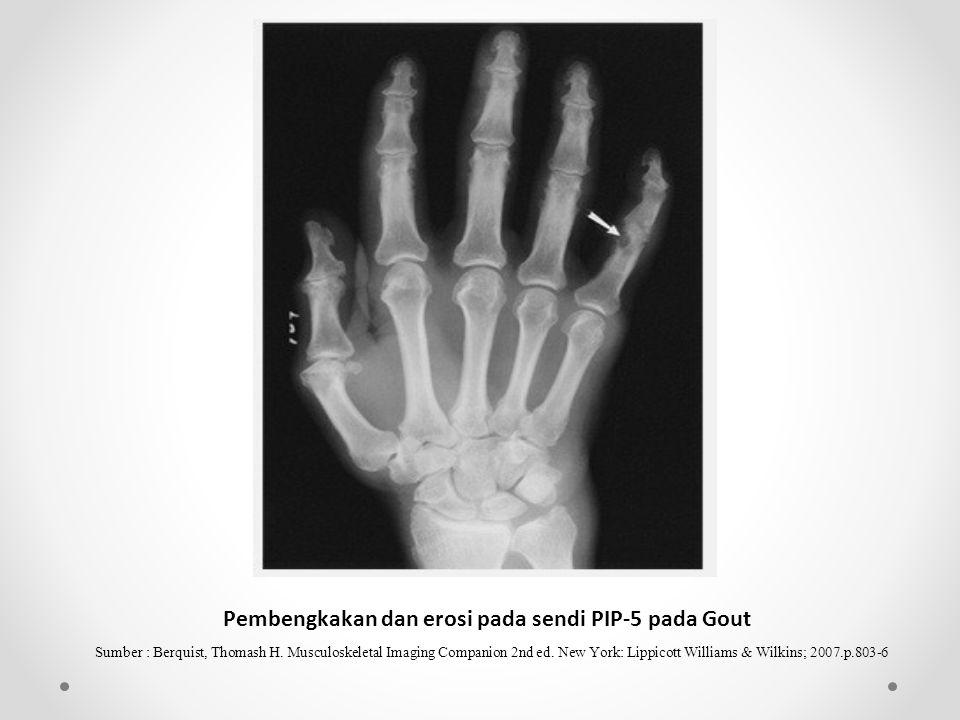 Pembengkakan dan erosi pada sendi PIP-5 pada Gout
