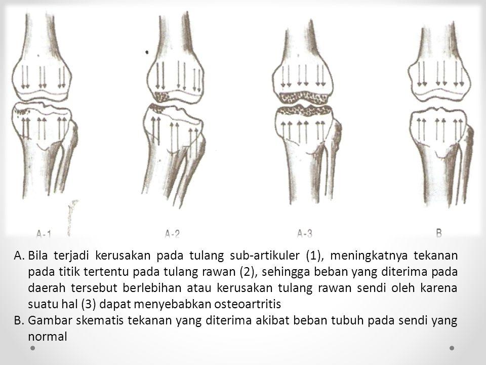 A. Bila terjadi kerusakan pada tulang sub-artikuler (1), meningkatnya tekanan pada titik tertentu pada tulang rawan (2), sehingga beban yang diterima pada daerah tersebut berlebihan atau kerusakan tulang rawan sendi oleh karena suatu hal (3) dapat menyebabkan osteoartritis