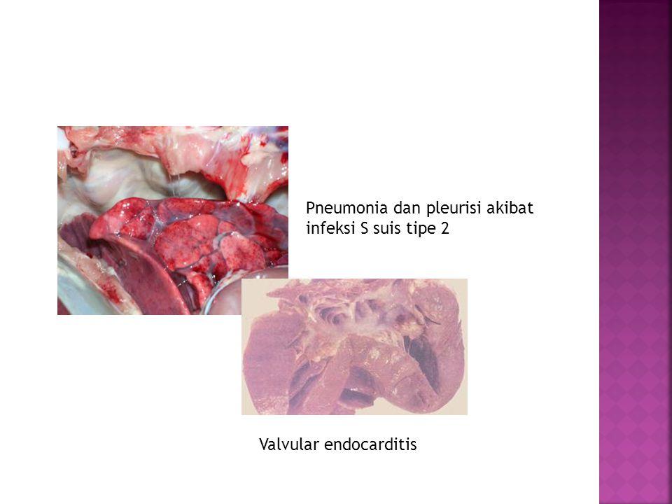 Pneumonia dan pleurisi akibat infeksi S suis tipe 2