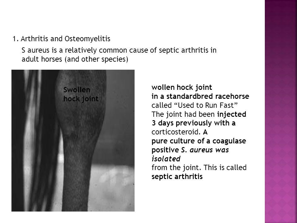 1. Arthritis and Osteomyelitis