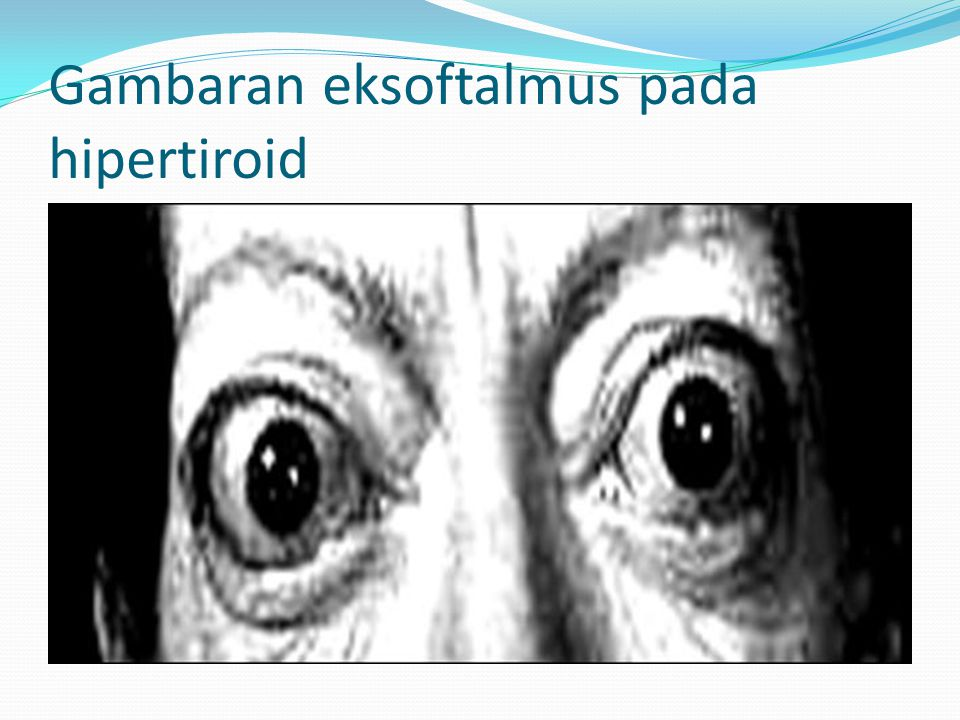 Gambaran eksoftalmus pada hipertiroid