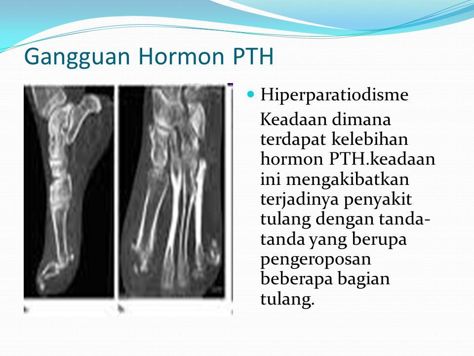 Gangguan Hormon PTH Hiperparatiodisme