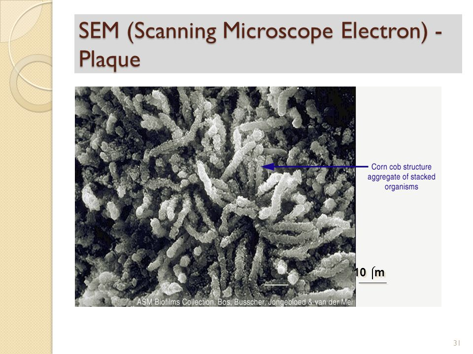SEM (Scanning Microscope Electron) - Plaque