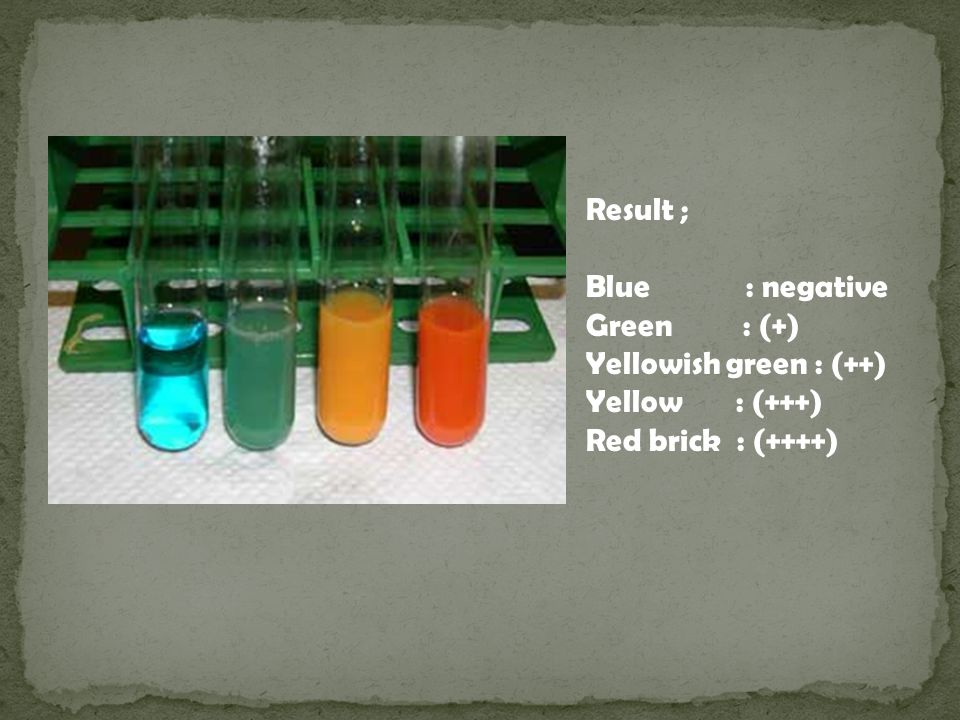 Result ; Blue : negative. Green : (+) Yellowish green : (++) Yellow : (+++)