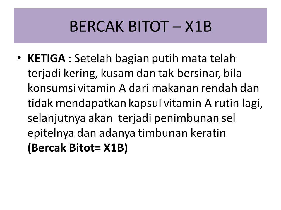 BERCAK BITOT – X1B