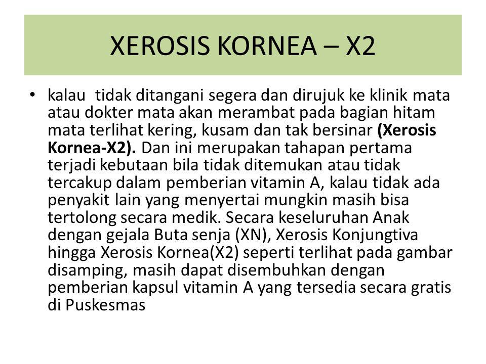 XEROSIS KORNEA – X2