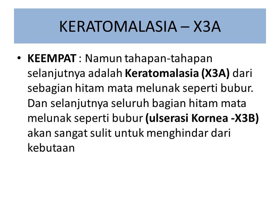 KERATOMALASIA – X3A