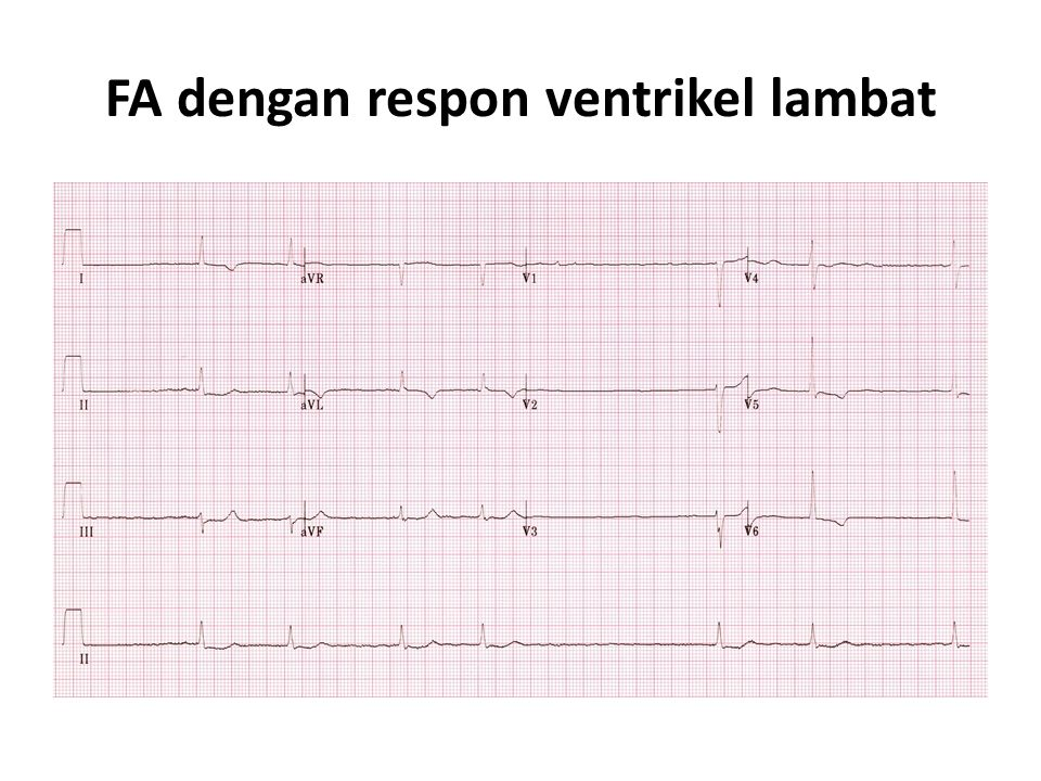 FA dengan respon ventrikel lambat