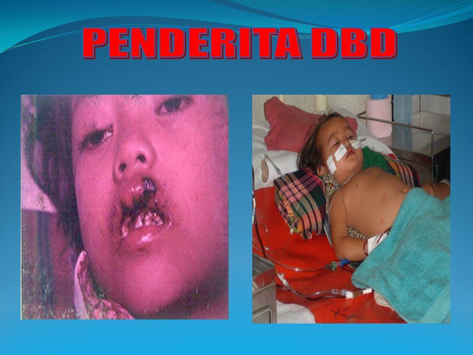 PENDERITA DBD