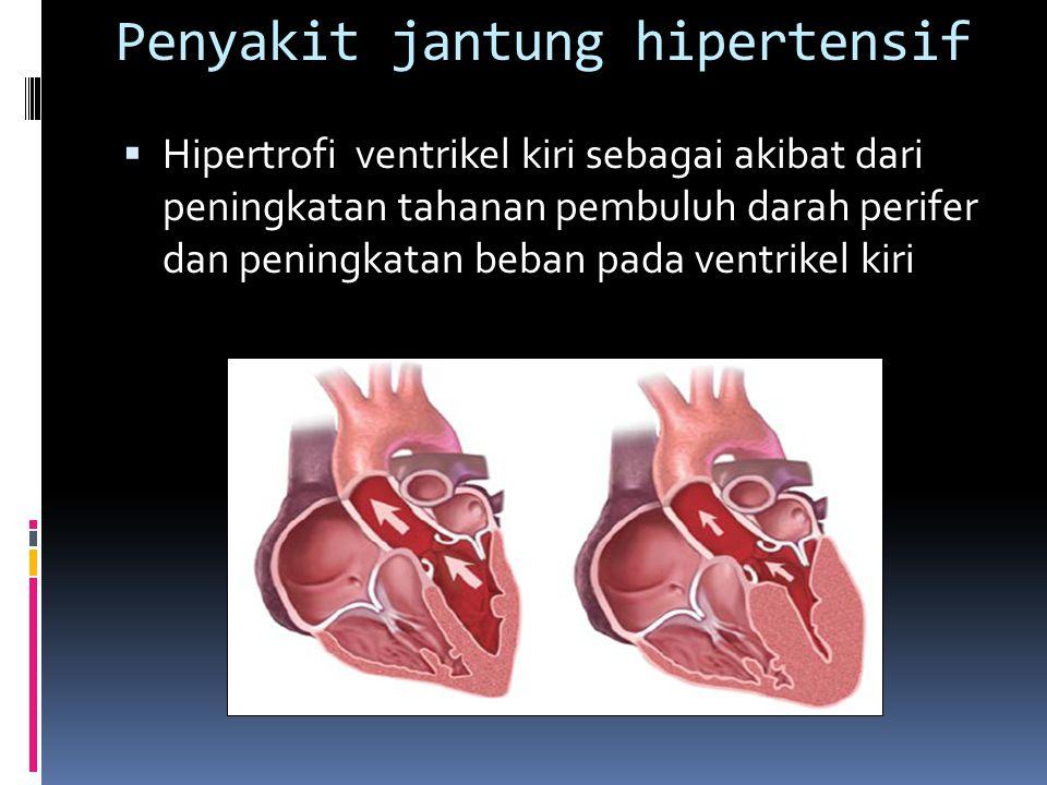 Penyakit jantung hipertensif