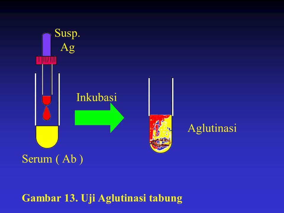 Susp. Ag Inkubasi Aglutinasi Serum ( Ab )