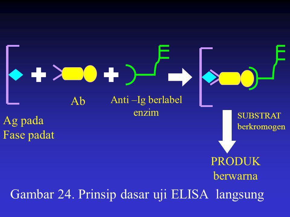 Anti –Ig berlabel enzim