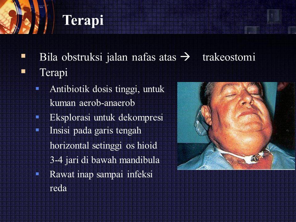 Terapi  Bila obstruksi jalan nafas atas  trakeostomi  Terapi