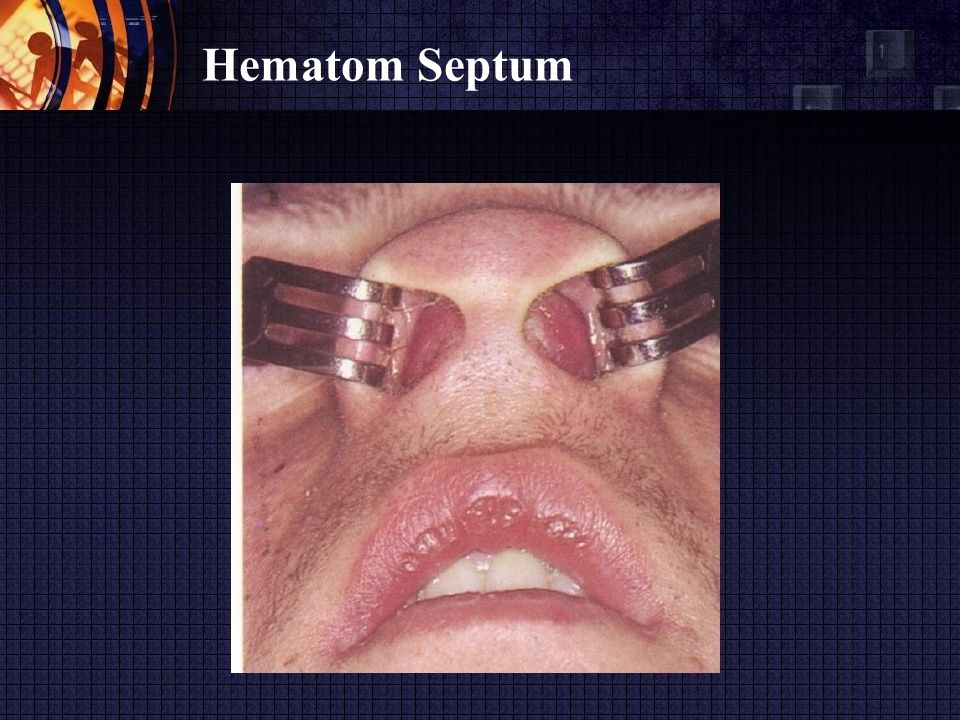 Hematom Septum