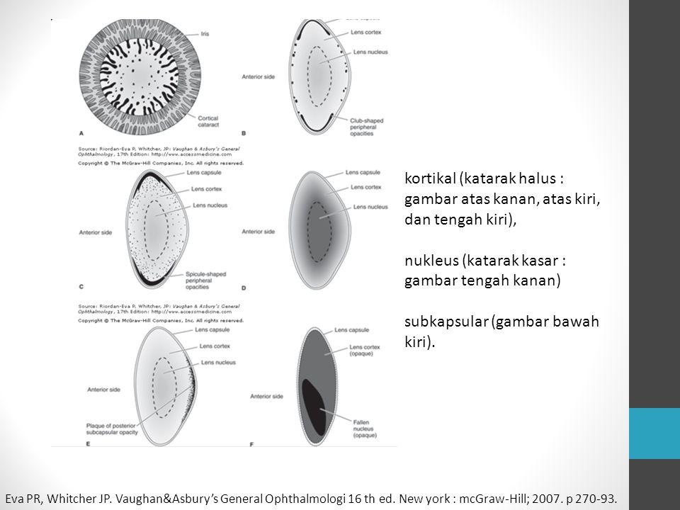 nukleus (katarak kasar : gambar tengah kanan)