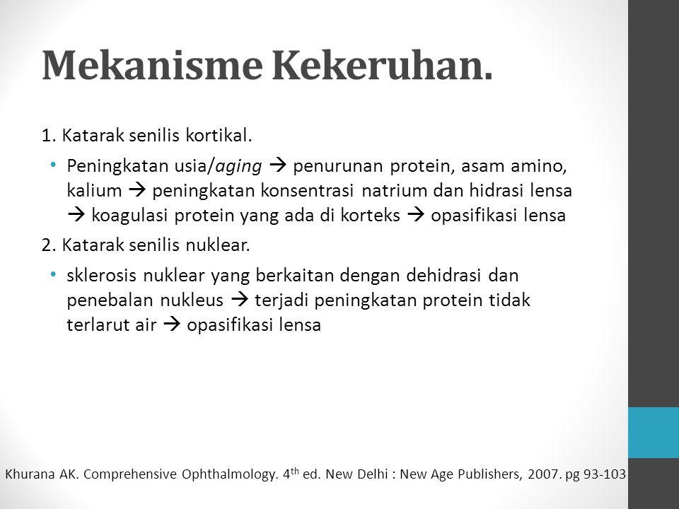 Mekanisme Kekeruhan. 1. Katarak senilis kortikal.
