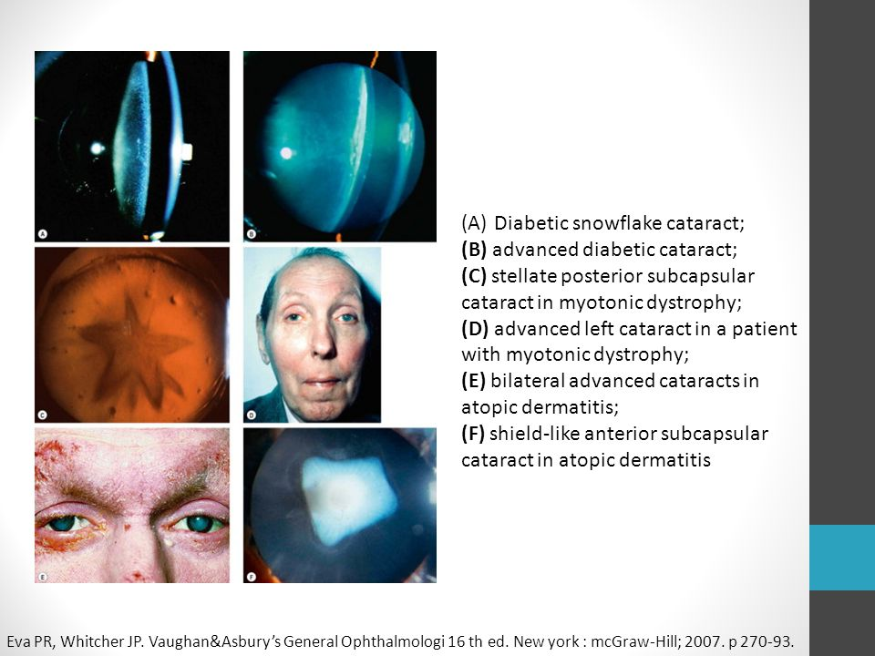 Diabetic snowflake cataract; (B) advanced diabetic cataract;