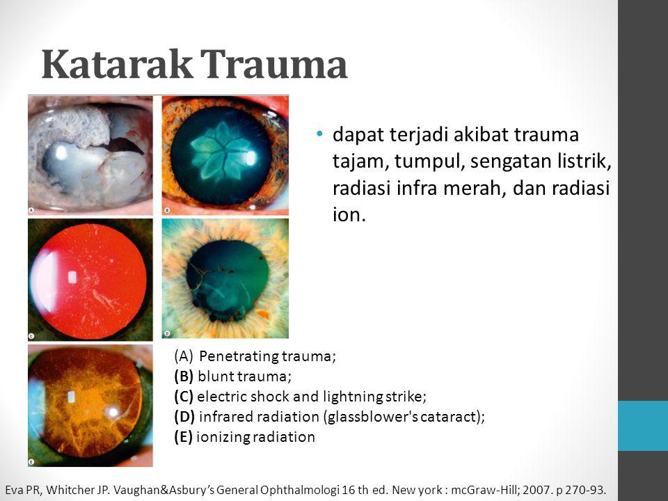 Katarak Trauma dapat terjadi akibat trauma tajam, tumpul, sengatan listrik, radiasi infra merah, dan radiasi ion.