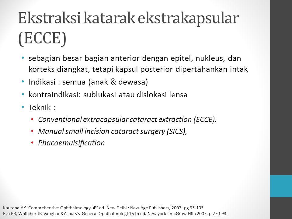 Ekstraksi katarak ekstrakapsular (ECCE)