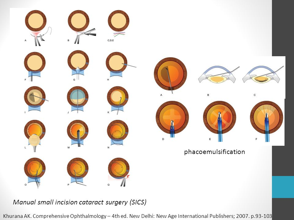 Manual small incision cataract surgery (SICS)