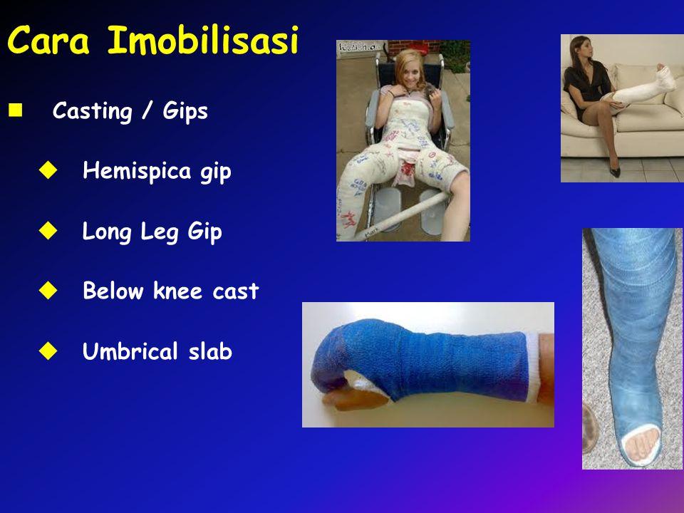 Cara Imobilisasi Casting / Gips Hemispica gip Long Leg Gip