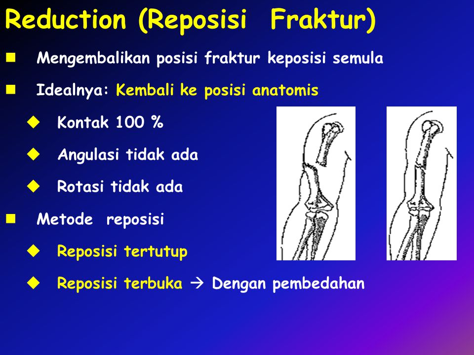 Reduction (Reposisi Fraktur)