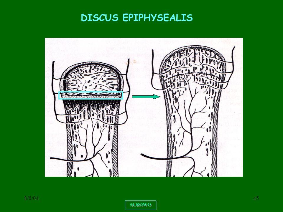DISCUS EPIPHYSEALIS 8/6/04 SUBOWO
