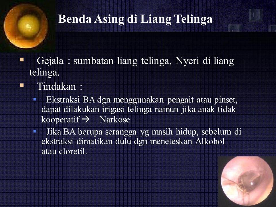 Benda Asing di Liang Telinga