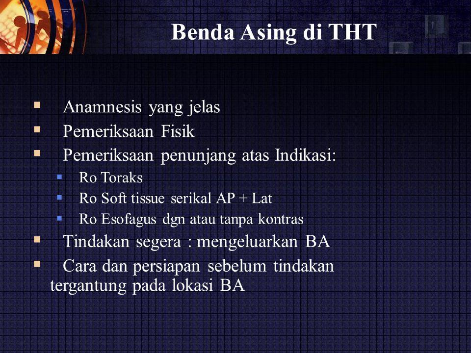 Benda Asing di THT  Anamnesis yang jelas  Pemeriksaan Fisik