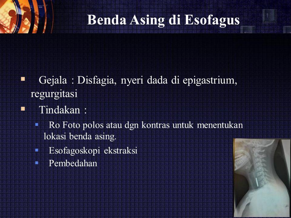 Benda Asing di Esofagus